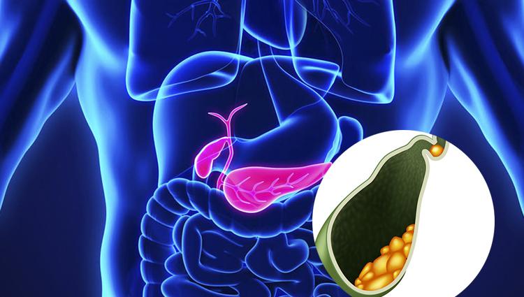 Cálculos de la vesícula biliar – Diagnostico en casa